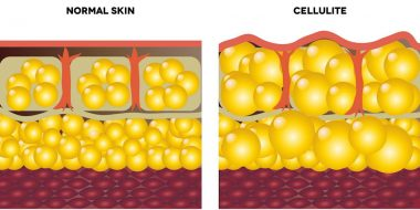 18663166 - cellulite and normal skin  medical illustration, isolated on a white background