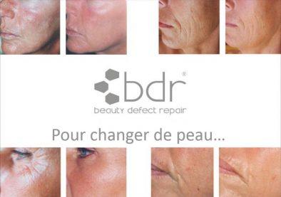 BDR changer de peau