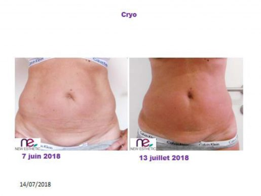 BOOK CRYO VENTRE RF CUISSES_Page_5