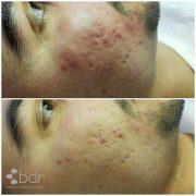 bsinnov acne